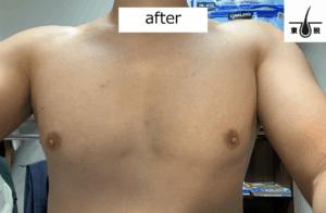 胸毛のレーザー脱毛後の写真