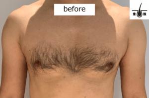 胸毛をレーザー脱毛する前の写真