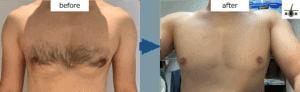 胸毛のレーザー脱毛前後の写真